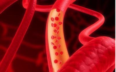 Sindromi mielodisplastiche, tipiche degli anziani e poco conosciute: sapete cosa sono?