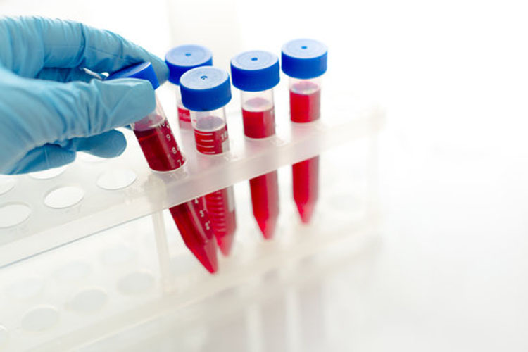 La EC approva Luspatercept per il trattamento di MDS